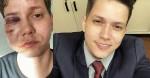 """Polícia conclui que Karol Eller mentiu e o caso evidencia modus operandi em que """"tudo vira homofobia"""""""