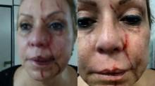 Médica é agredida em sala de atendimento de posto de saúde