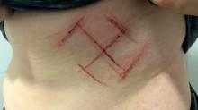 Mais um Fake News do PT: jovem com suástica se mutilou, indica perícia (Veja o Vídeo)