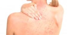 Dermatite: O que é e como evitá-la