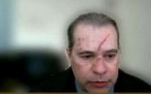 Em sessão do STF, Dias Toffoli 'assusta' com marcas no rosto