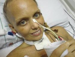 Bianca, desfigurada