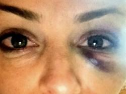 Tatiana, a ex-noiva do deputado, após a agressão