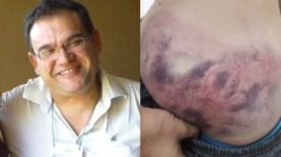 Petista, ex-reitor de Universidade, espanca enteado que comemorou vitória de Bolsonaro