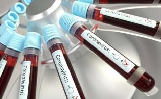 PCR: O Exame que detecta o covid-19