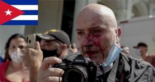 Imagens do levante contra o regime comunista em Cuba – Fotógrafo foi ferido no rosto (veja o vídeo)