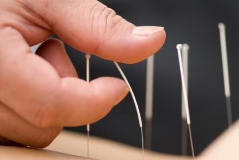Criança que engoliu agulha em acupuntura será indenizada