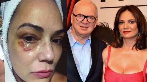Lirio Parisotto perde primeira batalha para Luiza Brunet