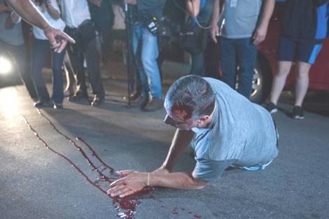 Homem, vítima de tentativa de homicídio, em frente ao Instituto Lula, fala pela primeira vez (Veja o Vídeo)