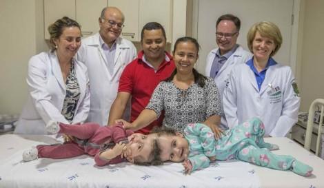 Operação hoje pretende separar o cérebro, veias e artérias de irmãs siamesas brasileiras
