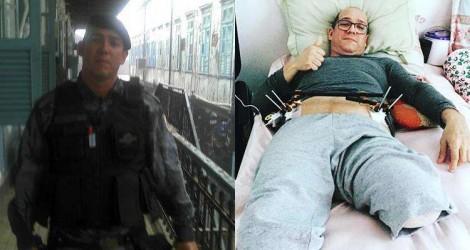 O impressionante relato de um PM que salvou a vida, mas perdeu a perna, no exercício do trabalho