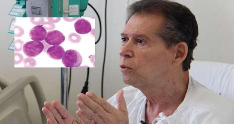 Médicos brasileiros aplicam tratamento inovador que faz desaparecer células de linfoma