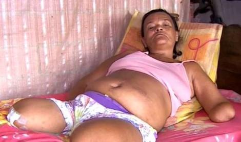 Mulher sem mãos e sem pernas diz ter benefício negado pelo INSS por não assinar papel