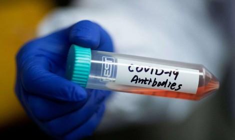 Cientistas chineses anunciam importante descoberta contra o Covid-19