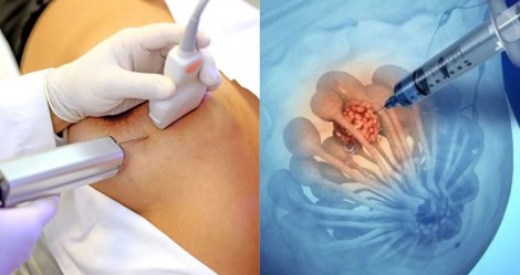 """""""Biópsia da mama"""": Conheça mais este procedimento"""