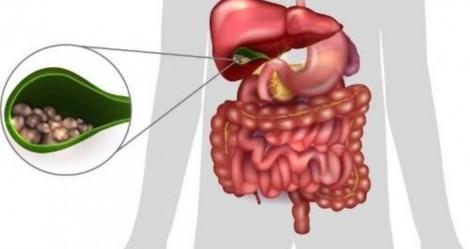 Cuide da sua saúde e não só da sua doença: Cálculo na vesícula biliar