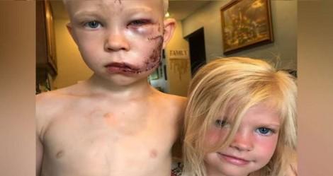 Menino de 6 anos salva irmã mais nova de ataque de cão e fica com o rosto desfigurado