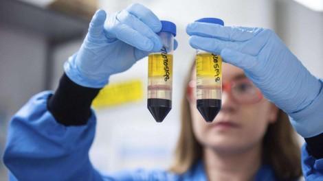 Brasil acerta ao investir na vacina de Oxford: AstraZeneca confirma 100% de eficácia para formas graves de Covid-19