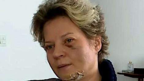 "Joice Hasselmann e as hipóteses plausíveis para o seu ""acidente doméstico"" (veja o vídeo)"