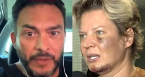 """Senador causa polêmica monstruosa e diz que hematomas de Joice podem ser resultado """"de chifre ou de pó"""" (veja o vídeo)"""