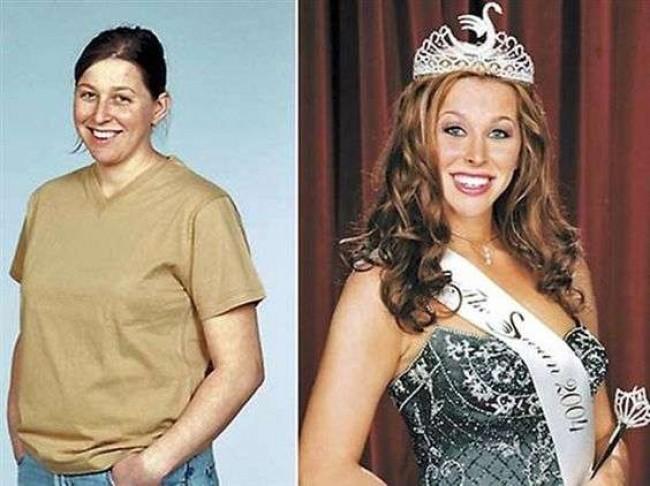 A competição consistia em ver qual mulher conseguia fazer mais cirurgias plásticas - Reprodução
